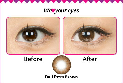 dark brown circle lenses before and after